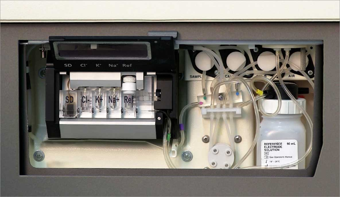 Unity® Integrated Electrolyte System Custom Parameter Options